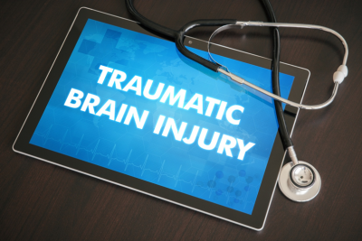 3 Tips to Remember When Hiring a Mild Traumatic Brain Injury Lawyer